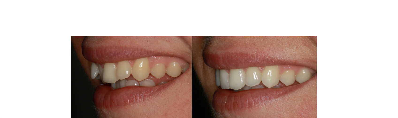 Inman-before-after